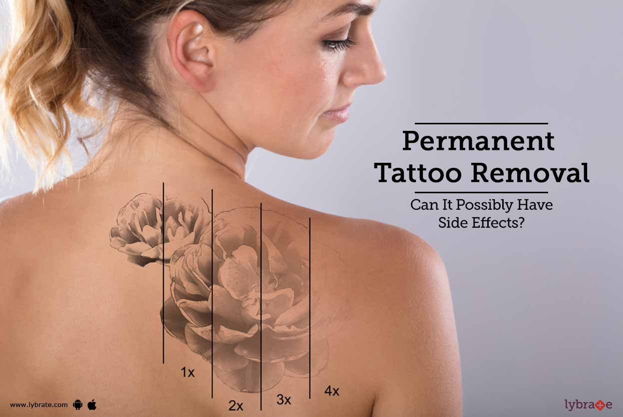 Permanent Tattoo Removal Can It Possibly Have Side Ideas And Designs