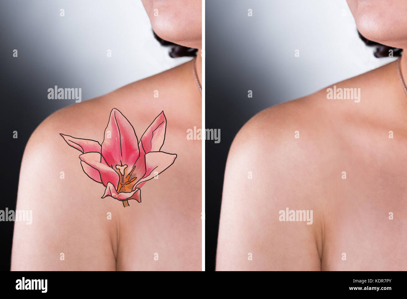 Person Showing Before And After Laser Tattoo Removal Ideas And Designs