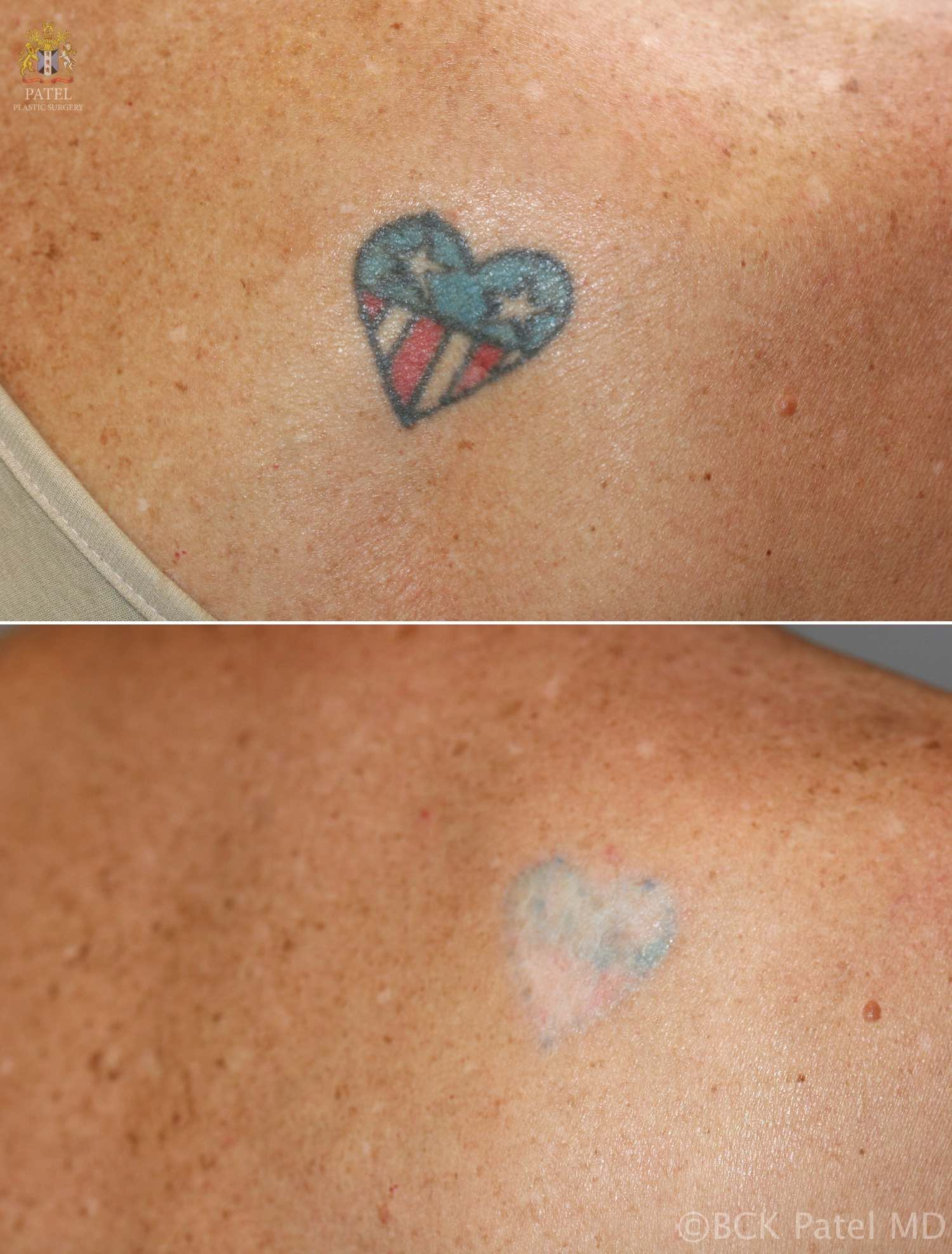 Efficient Removal Of Unwanted Tattoos Using Advanced Lasers Ideas And Designs