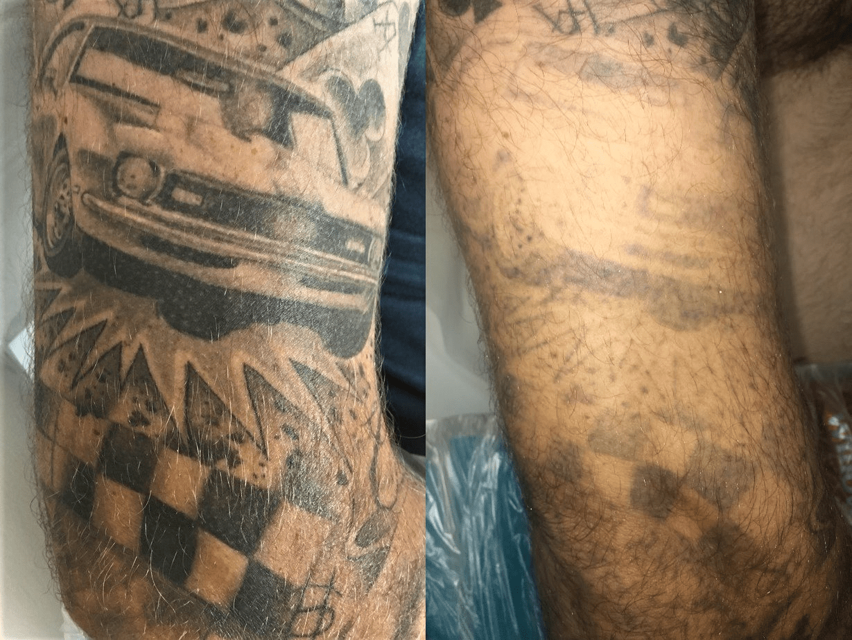 Laser Tattoo Removal Brisbane North Ideas And Designs