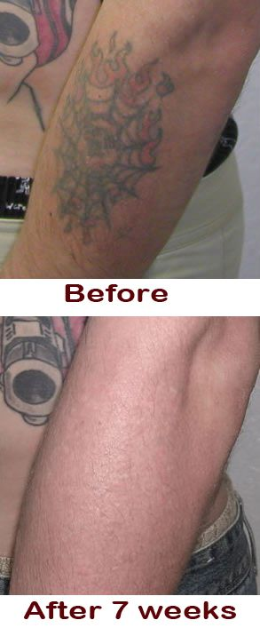 Best 25 Natural Tattoo Removal Ideas On Pinterest Ideas And Designs