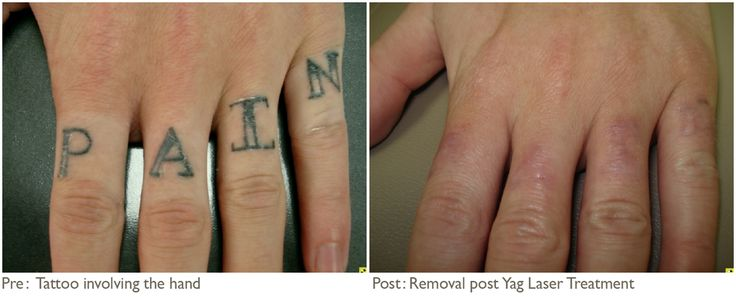 Hand Tattoo Removal Before And After Jpg Hand Tattoo Ideas And Designs