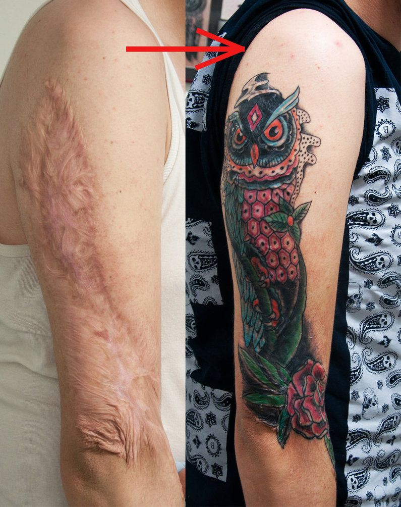 Tattoos Over Burn Scars Burn Scar Cover Healed By Ideas And Designs