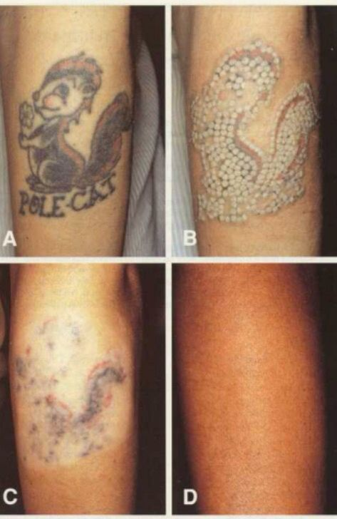 Tattoo Removal 50 Do You Have Tattoos That You Would Ideas And Designs