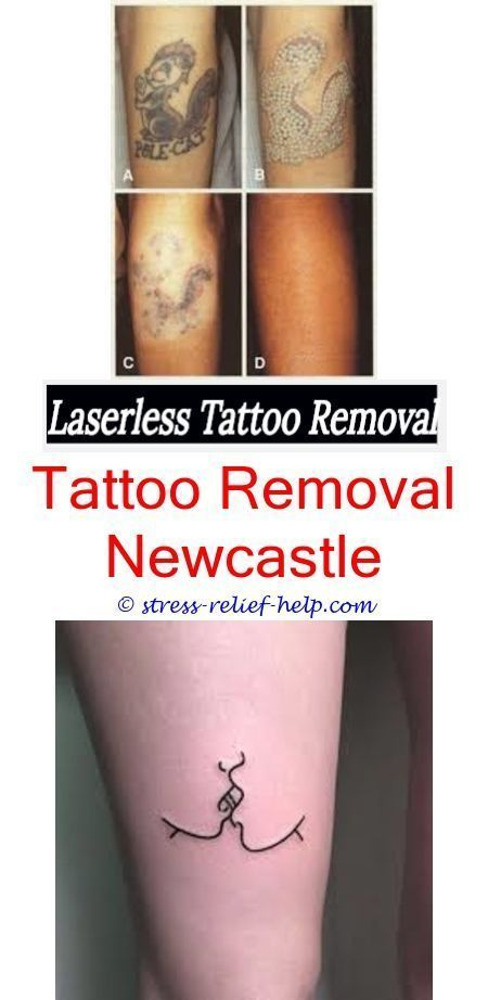 How To Remove Tattoos Yourself Can You Have Laser Tattoo Ideas And Designs