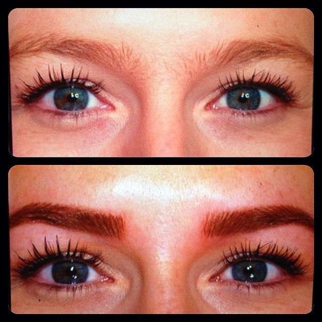 Laser Eyebrow Tattoo Removal Before And After Tattoos Ideas And Designs