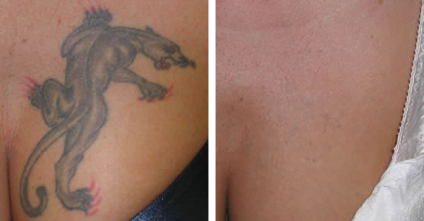 Perfect Tattoo Removal Laser Bella Ideas And Designs