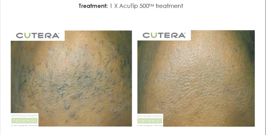 Used Cutera Coolglide Aesthetic Equipment For Sale Ideas And Designs