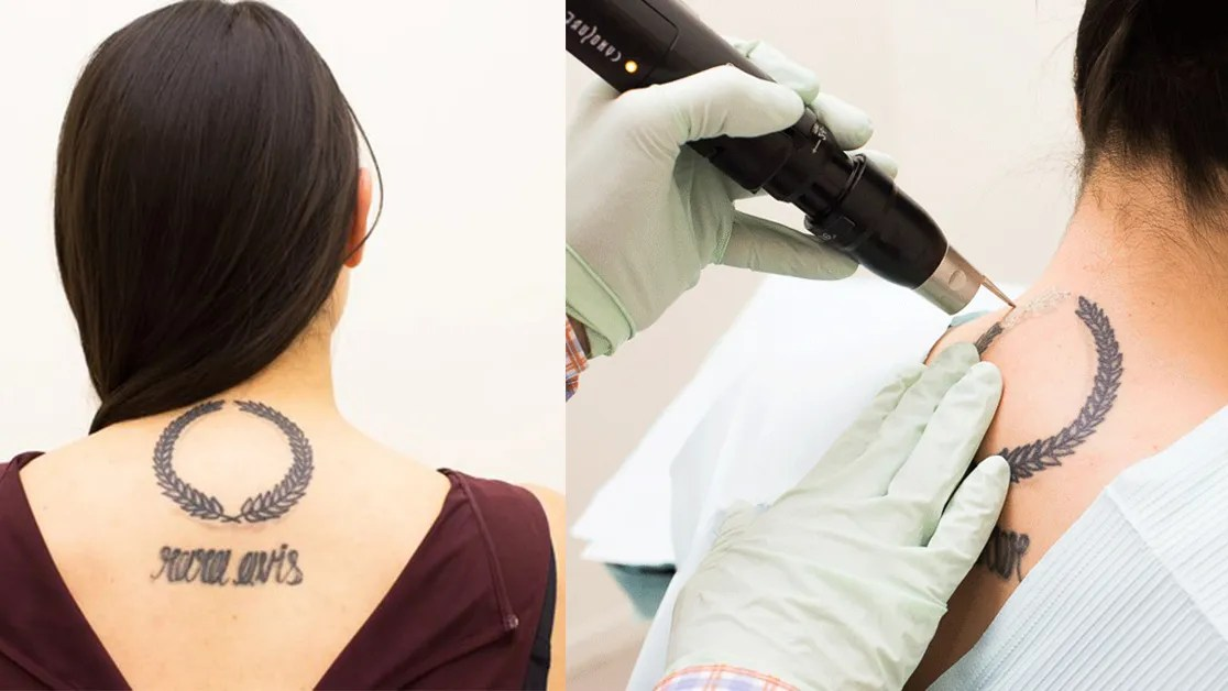 10 Things No One Tells You About Tattoo Removal Glamour Ideas And Designs