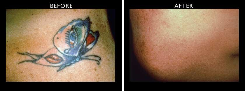 Laser Tattoo Removal Northwest Aesthetics Ideas And Designs