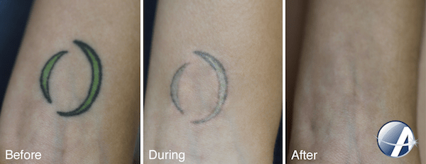 Laser Tattoo Removal Results Photos New Look Laser College Ideas And Designs