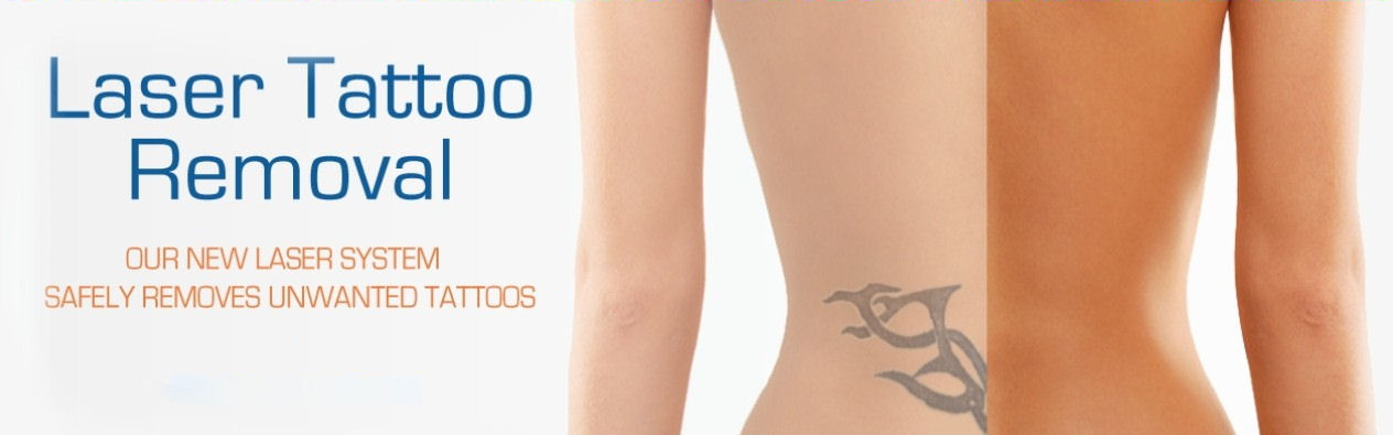 How Scarring After Laser Tattoo Removal Can Be Prevented Ideas And Designs