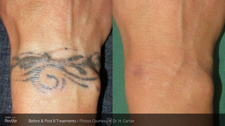Laser Tattoo Removal Detroit Elite Ink Ideas And Designs