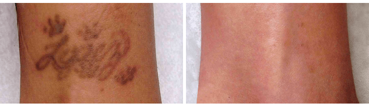 Tattoo Removal At London Based Courthouse Clinics Ideas And Designs