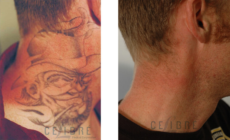 Get Rid Tattoo Easy Ideas And Designs