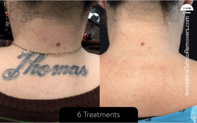 Laser Tattoo Removal Naperville Drs Burt And Will Ideas And Designs