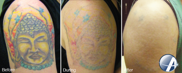 Complete Color Spectrum Tattoo Removal The Cosmetic Ideas And Designs