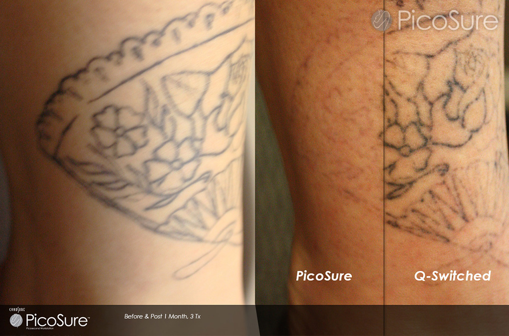 Which Is The Best Tattoo Removal Method Claritas Laser Ideas And Designs
