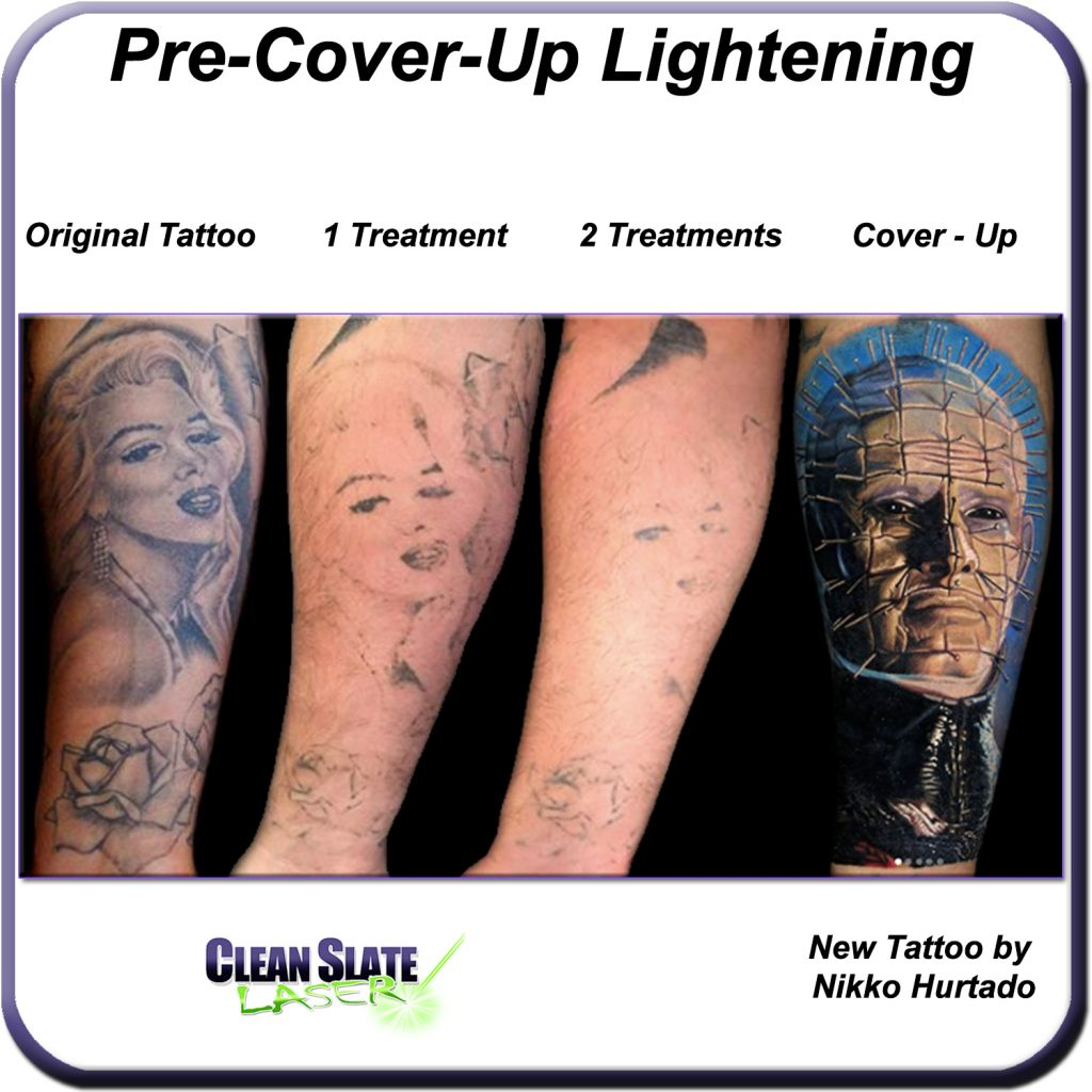 Pre Cover Up Lightening – Clean Slate Laser Tattoo Removal Ideas And Designs