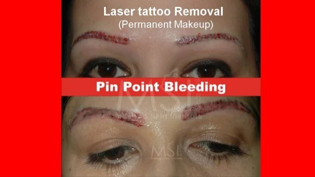 Laser Tattoo Removal The Savior Ideas And Designs