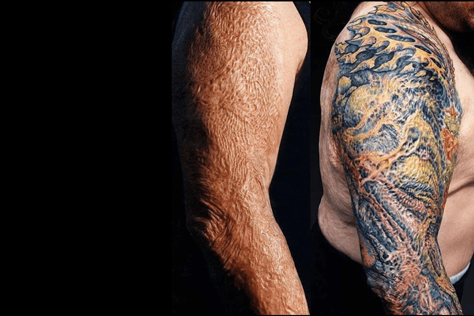 How Tattoos Can Help Patients With Skin Grafts And Scars Ideas And Designs