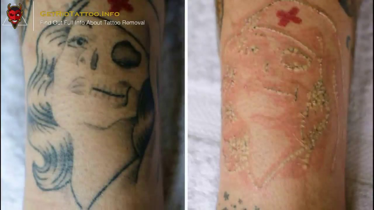 Saline Tattoo Removal – Everything You Need To Learn About Ideas And Designs