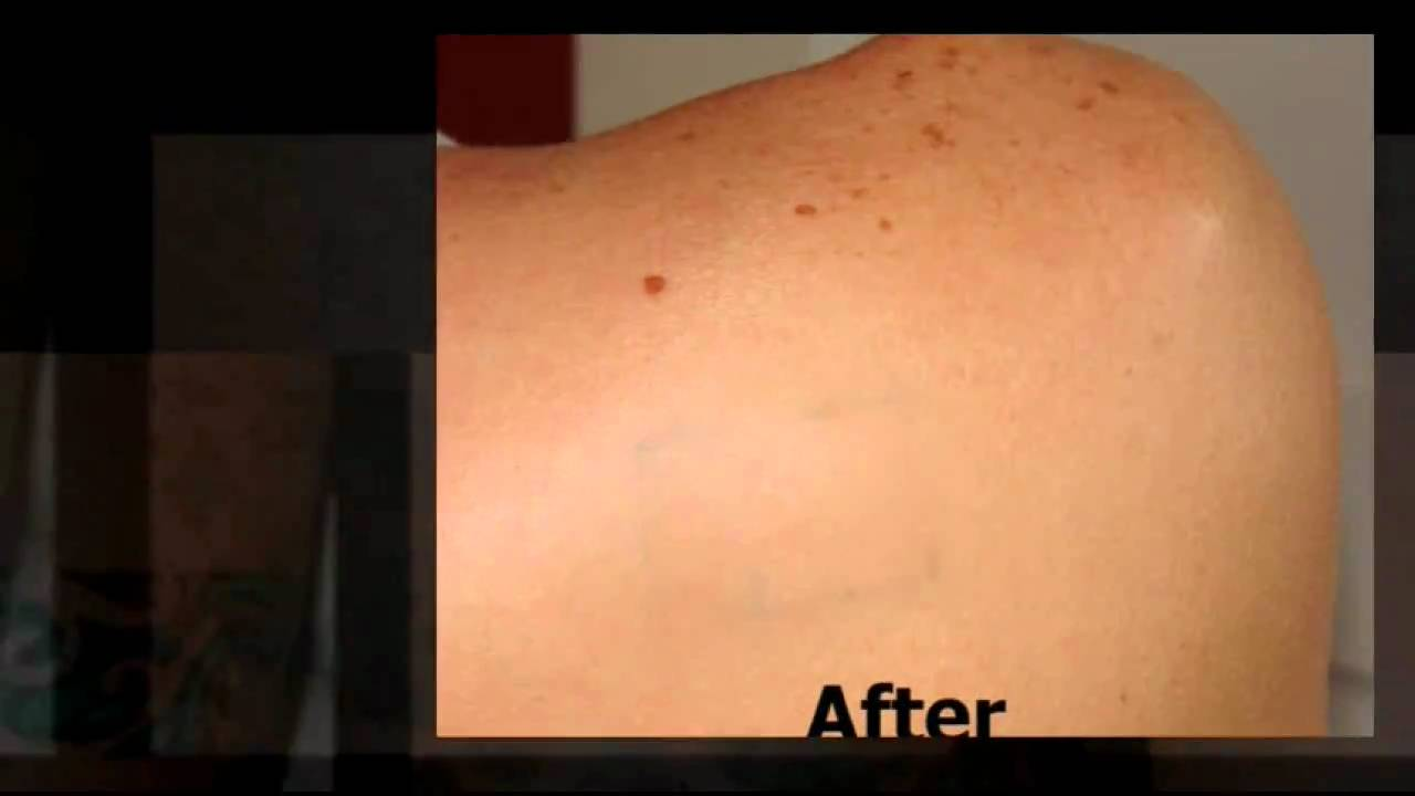 Tattoo Removal Cream Youtube Ideas And Designs
