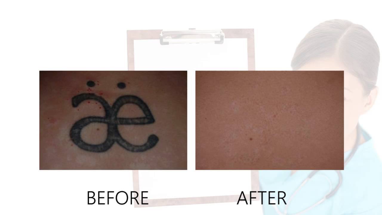 Laser Tattoo Removal Before After Photos Alex Ideas And Designs