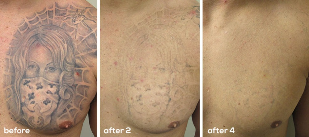 Laser Tattoo Removal The Effective And Safe Way To Get Ideas And Designs