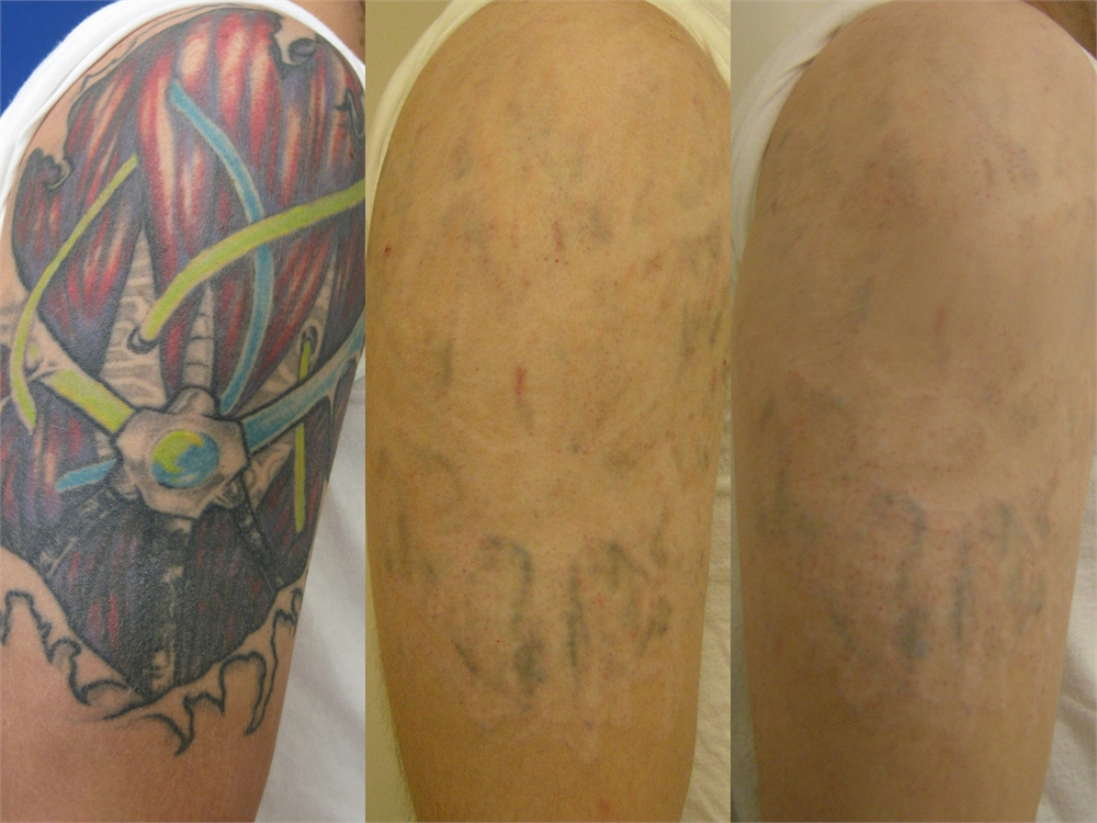 Tattoo Removal Washington Dc Center For Laser Surgery Ideas And Designs