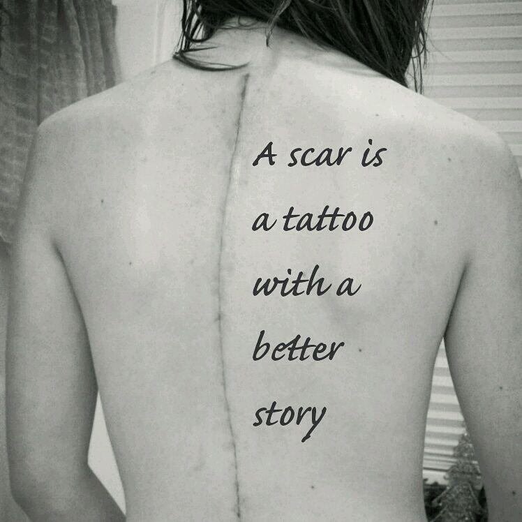 Scoliosis Support On Twitter A Scar Is A Tattoo With A Ideas And Designs