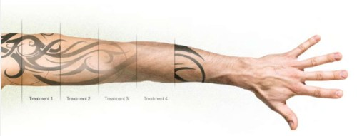 Tattoo Laser Removal Prices Tattoo Removal Ideas And Designs