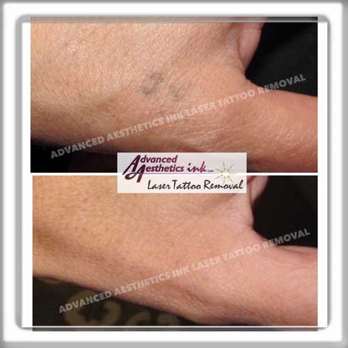 Advanced Aesthetics Ink Laser Tattoo Removal Ideas And Designs