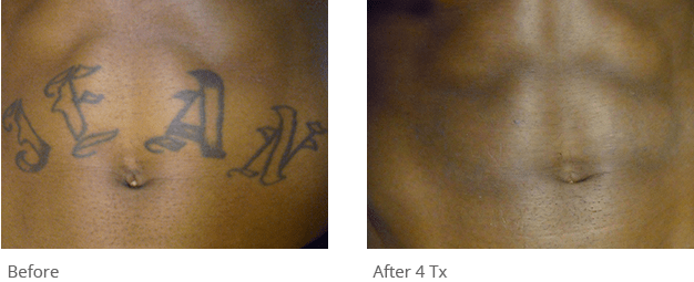 Astanza Trinity Best Nd Yag Ruby Tattoo Removal Laser Ideas And Designs