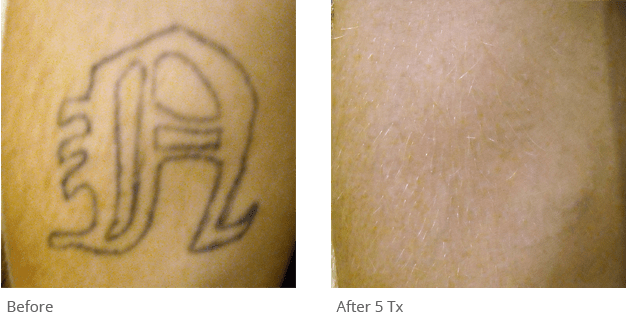 Q Switched Nd Yag Tattoo Removal Laser Astanza Duality Ideas And Designs