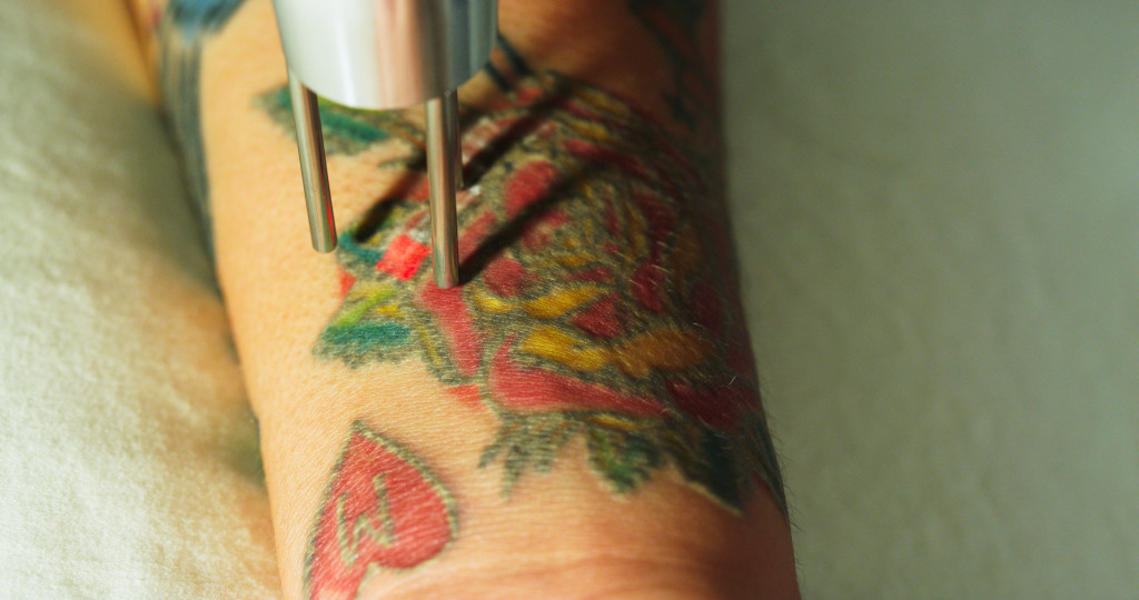 Tampa Tattoo Removal Arviv Medical Aesthetics Astanza Ideas And Designs