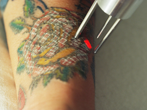 Tattoo Removal Laser Technology In Houston Texas Ideas And Designs