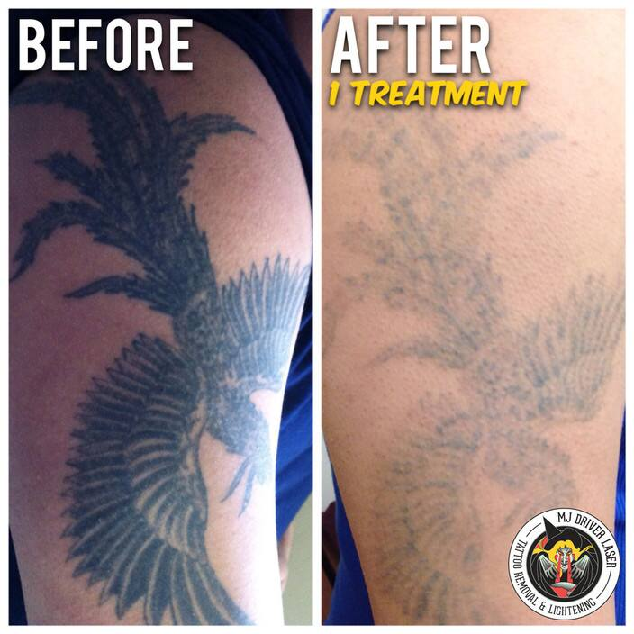 Mj Driver Laser Tattoo Removal Lightening Melbourne In Ideas And Designs
