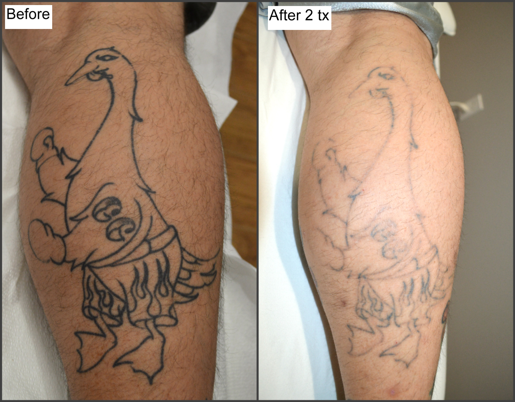 Tattoo Removal By Jayvo Scott Millefiori Ideas And Designs