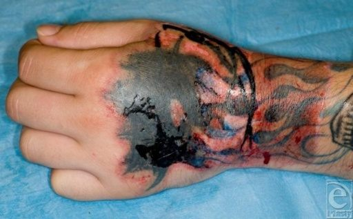 Does Tca Tri Chloroacetic Acid Work For At Home Tattoo Ideas And Designs