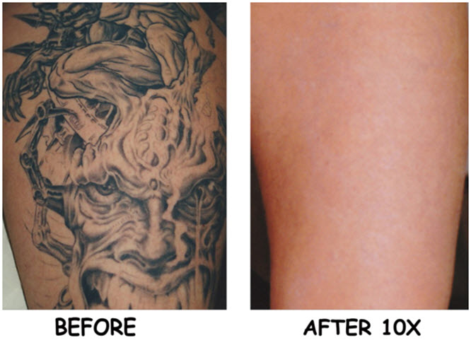 Laser Removal…Is It A Solution Unsolicited Ink Ideas And Designs