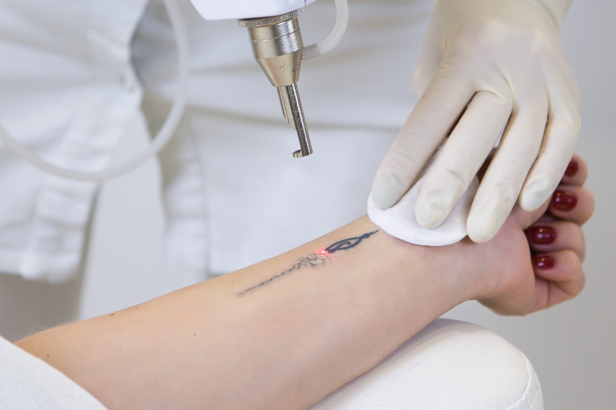 How Does Laser Tattoo Removal Work 7 Facts You Need To Know Ideas And Designs