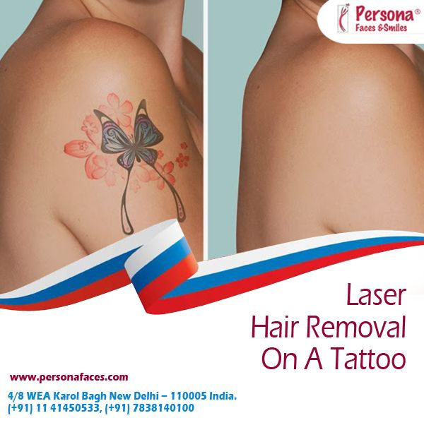 17 Best Images About Laser Hair Removal On Pinterest To Ideas And Designs