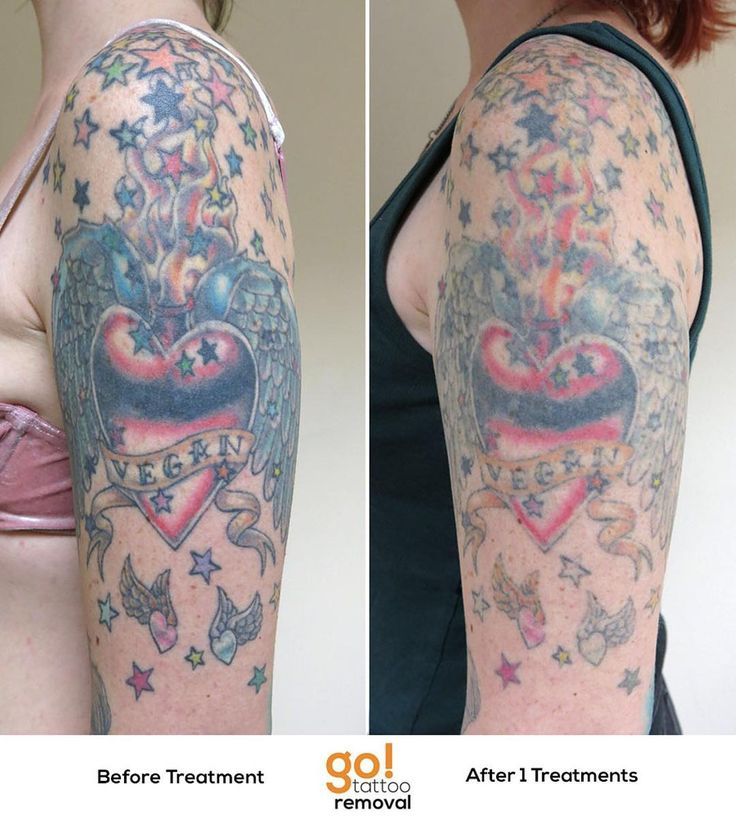 728 Best Tattoo Removal In Progress Images On Pinterest Ideas And Designs