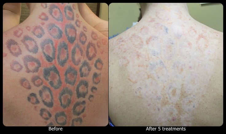 1000 Images About Vanish Laser Tattoo Removal Progression Ideas And Designs