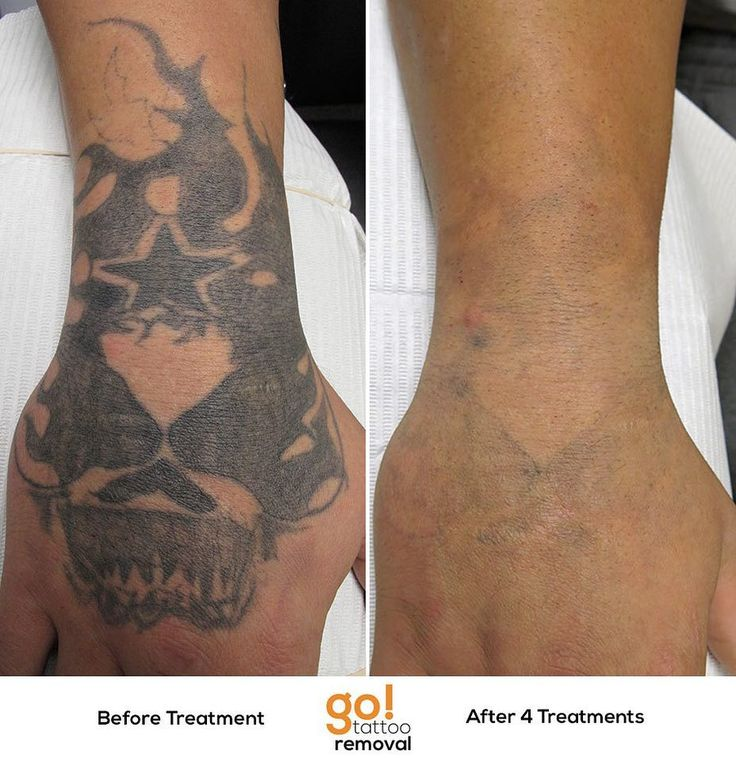 17 Best Images About Tattoo Removal In Progress On Ideas And Designs