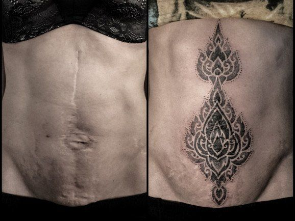 17 Best Ideas About Tattoo Over Scar On Pinterest Ideas And Designs