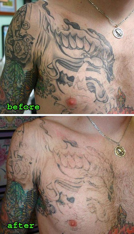 60 Best Images About Laserless Tattoo Removal Effective Ideas And Designs