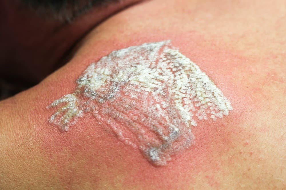 The Truth About Laser Tattoo Removal Side Effects Andrea Ideas And Designs