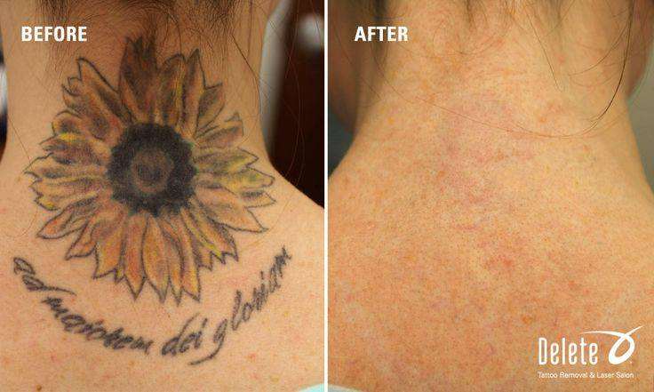 What To Expect With Tattoo Removal Delete Tattoo Removal Ideas And Designs